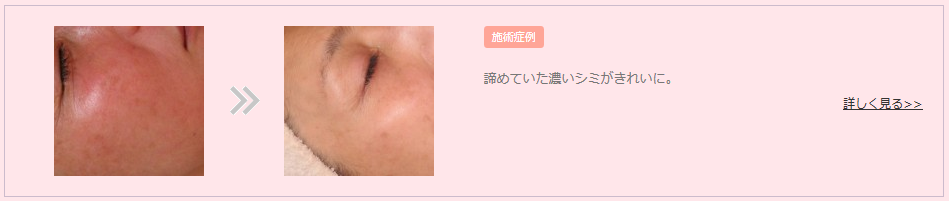 2015-07-08_21h53_12