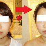 小顔施術1回目。