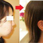 小顔施術7回目。