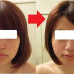 小顔コース1回の施術後の結果です。
